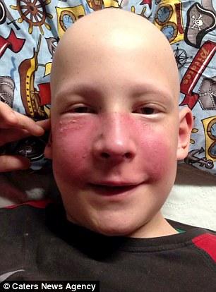 Suýt mất mạng vì tưởng khối u trên mũi là vết muỗi đốt - 2