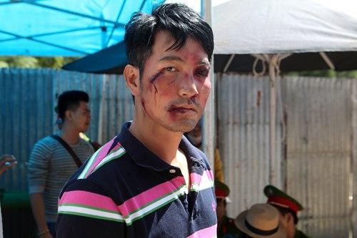 Nguyễn Phi Hùng bầm dập trong phim của Hoài Linh - 3