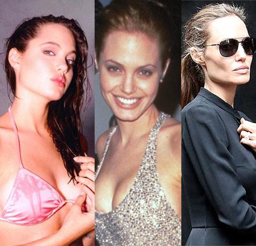 Loạt ảnh Angelina Jolie gầy trơ xương vì bệnh biếng ăn - 2
