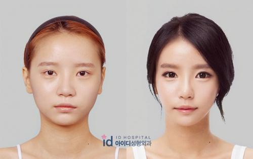 Sốc vì nhan sắc nguyên bản của hot girl đình đám xứ Hàn - 3