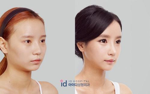 Sốc vì nhan sắc nguyên bản của hot girl đình đám xứ Hàn - 4