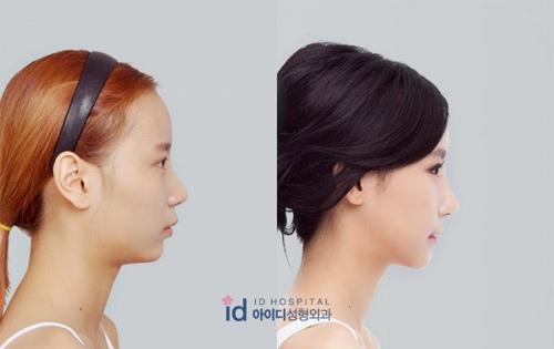 Sốc vì nhan sắc nguyên bản của hot girl đình đám xứ Hàn - 5