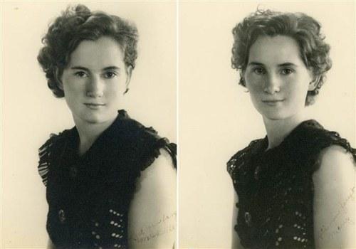 Cặp song sinh suốt 100 năm không rời xa nửa bước - 2