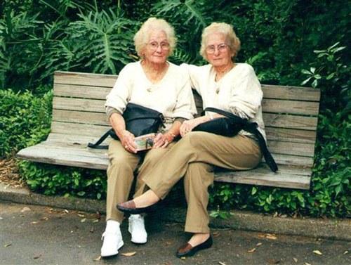 Cặp song sinh suốt 100 năm không rời xa nửa bước - 5