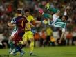 Real Betis - Barcelona: Bước ngoặt chiếc thẻ đỏ