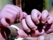 Kỳ lạ bé sơ sinh có 31 ngón tay và ngón chân