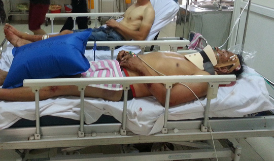 Xe khách và xe tải tông nhau, 6 người nhập viện - 2