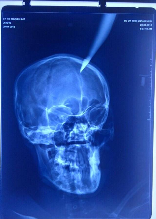 Công bố hình ảnh cứu sống thai phụ bị dao đâm vào đầu - 2