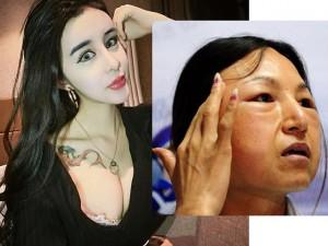 Giải mã cơn nghiện thẩm mỹ của thiếu nữ Trung Quốc