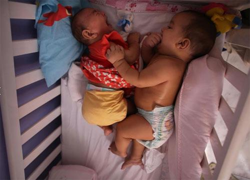 Bí ẩn trường hợp sinh đôi nhưng chỉ một bé nhiễm virus Zika - 9