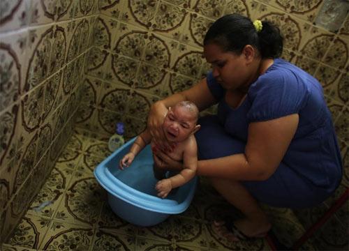 Bí ẩn trường hợp sinh đôi nhưng chỉ một bé nhiễm virus Zika - 7