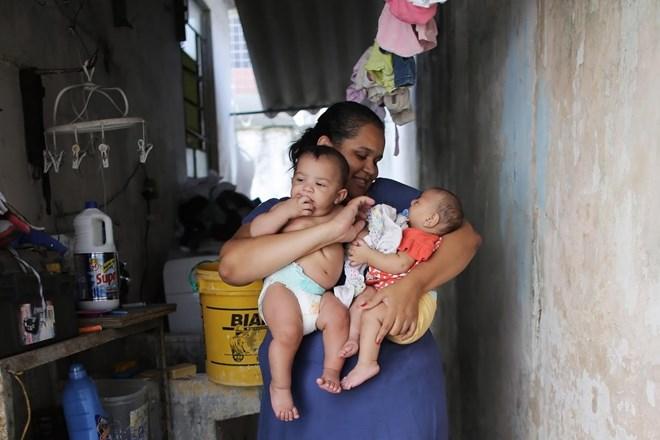 Bí ẩn trường hợp sinh đôi nhưng chỉ một bé nhiễm virus Zika - 1