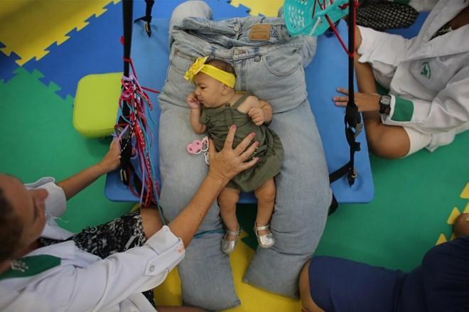 Bí ẩn trường hợp sinh đôi nhưng chỉ một bé nhiễm virus Zika - 4