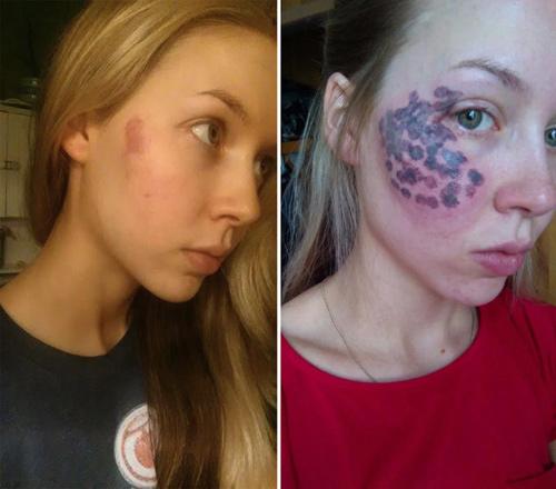 Thiếu nữ Mỹ bị phá hủy khuôn mặt vì tẩy vết bớt - 1