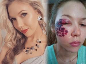 Thiếu nữ Mỹ bị phá hủy khuôn mặt vì tẩy vết bớt