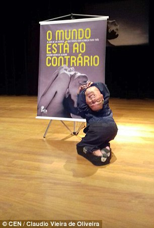 """Brazil: Người bị """"bẻ"""" ngược đầu dùng miệng viết tự truyện - 2"""
