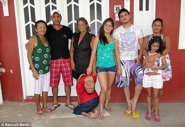 """Brazil: Người bị """"bẻ"""" ngược đầu dùng miệng viết tự truyện - 5"""