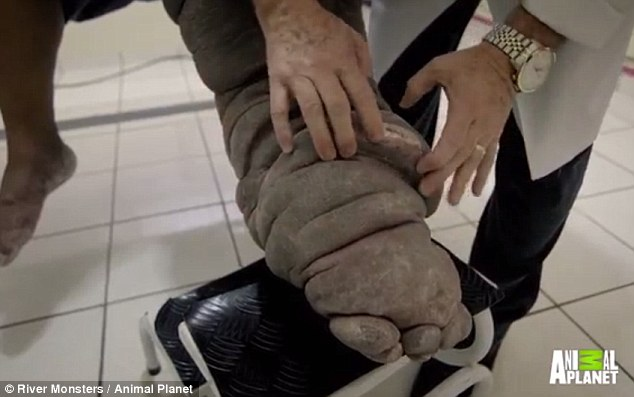 Chân phù như chân voi vì muỗi đốt từ 20 năm trước - 2