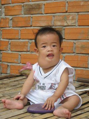 Bé 9 tháng tuổi bị bướu bạch huyết làm biến dạng mặt - 1