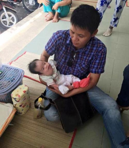Bé 9 tháng tuổi bị bướu bạch huyết làm biến dạng mặt - 2