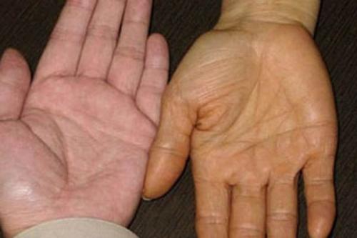 10 dấu hiệu nhận biết ung thư - 2