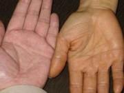 10 triệu chứng cảnh báo ung thư nguy hiểm nhưng dễ bị phớt lờ