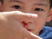 Sức khỏe đời sống - Khi nào nên cho trẻ bị chảy máu cam đến bác sĩ?
