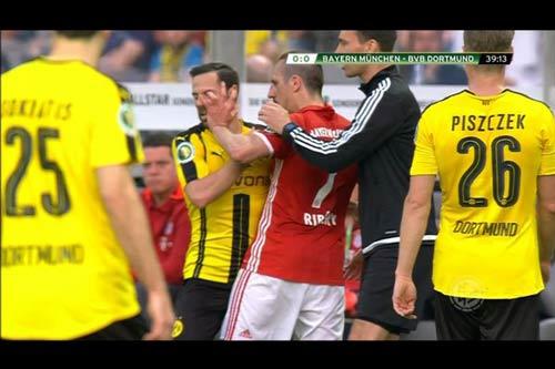 Ribery chọc mắt đối thủ, nạn nhân bị… thẻ vàng - 1