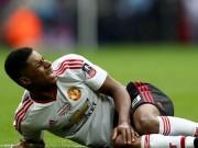 Bóng đá - Rashford chấn thương đầu gối, chưa chắc dự EURO
