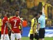 Ribery chọc mắt đối thủ, nạn nhân bị… thẻ vàng