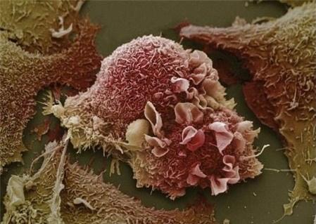 Sự phá huỷ tàn khốc của tế bào ung thư - 1