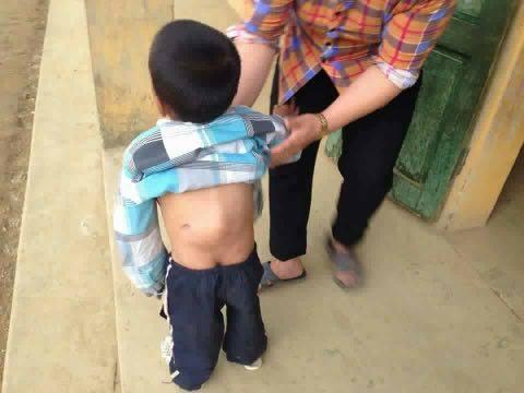 Xót xa bé trai 6 tuổi còng lưng như cụ già vì khối u - 1