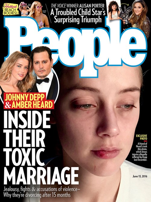 Vợ cũ Johnny Depp kể chi tiết 2 vụ bị chồng hành hung - 1