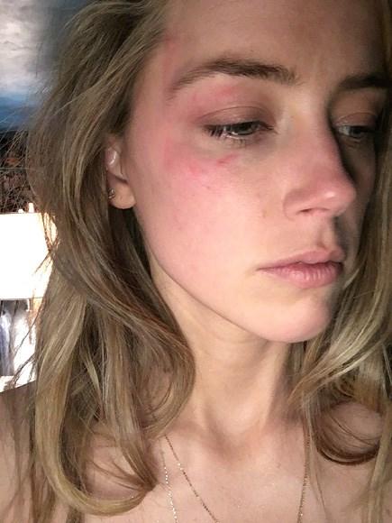Vợ cũ Johnny Depp kể chi tiết 2 vụ bị chồng hành hung - 2