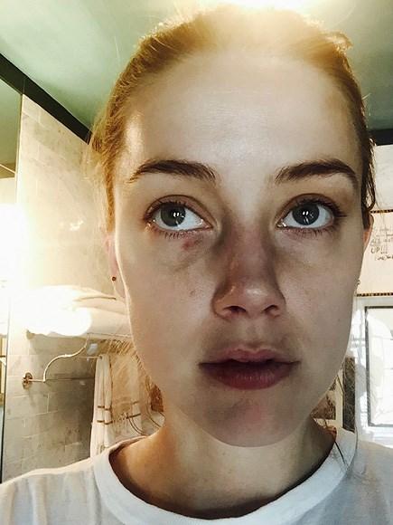 Vợ cũ Johnny Depp kể chi tiết 2 vụ bị chồng hành hung - 3