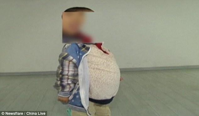 """Cậu bé 6 tuổi """"bụng chửa"""" ở Trung Quốc - 1"""