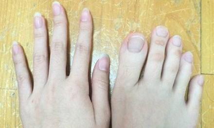 """Nữ sinh nổi tiếng vì """"ngón chân dài như ngón tay"""" - 1"""