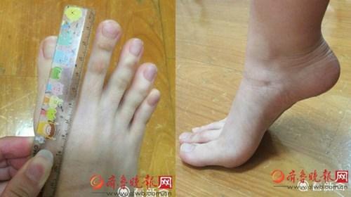 """Nữ sinh nổi tiếng vì """"ngón chân dài như ngón tay"""" - 2"""