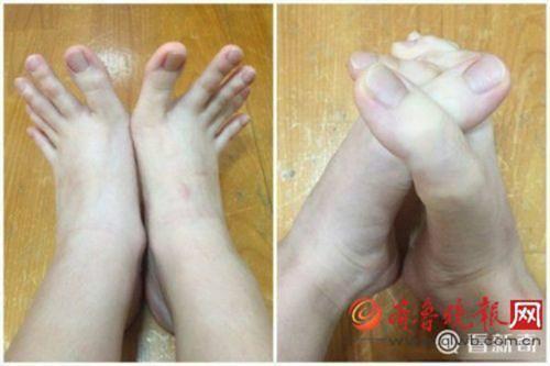 """Nữ sinh nổi tiếng vì """"ngón chân dài như ngón tay"""" - 3"""