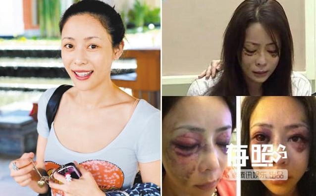6 mỹ nhân Hoa bị chồng đại gia đánh không thương tiếc - 5