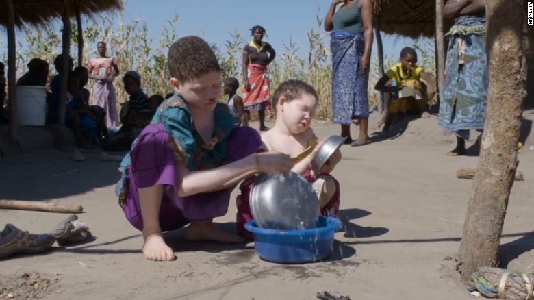 Nạn săn người bạch tạng lấy xương man rợ ở Malawi - 2