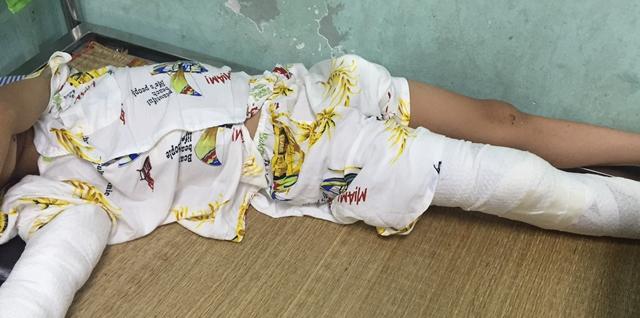 Bé trai 7 tuổi rơi từ độ cao 8m, vỡ sọ não sống sót kỳ diệu - 1