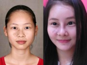 Nữ sinh Sư phạm HN siêu xinh nhờ xóa chàm trên mặt