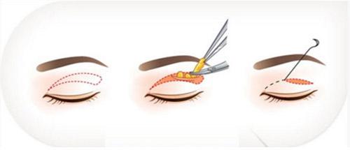 Trẻ hơn 10 tuổi nhờ khắc phục nhược điểm ở mắt bằng cắt mí - 2