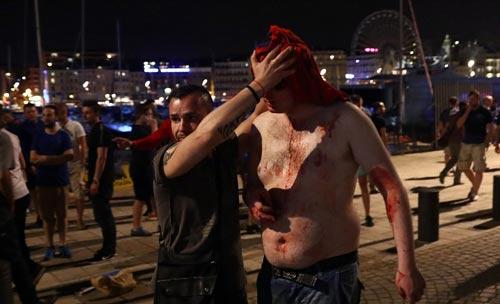 Hỗn chiến với cảnh sát, fan Anh đổ máu tại Marseille - 3