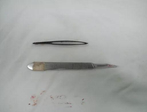 Lấy cây nhíp dài 7 cm nằm trong bụng gần 1 tháng - 2