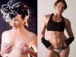 Nữ diễn viên suýt chết sau nâng ngực vì khuẩn ăn thịt