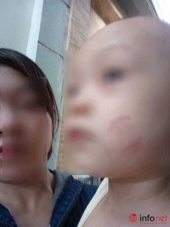 Hà Nội: Bé 20 tháng tuổi bị cắn tím người khi ở trường mầm non về - 2