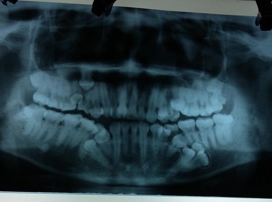 Hà Nội: Nam thanh niên mọc thừa tới 13 chiếc răng - 1