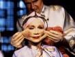 """Quá khứ """"rùng mình"""" của ngành phẫu thuật thẩm mỹ"""